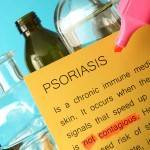Psoriasis Causes, Symptoms & Treatments
