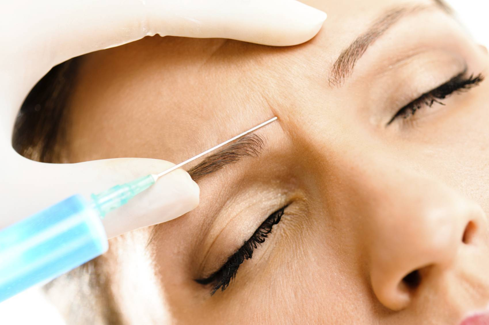 How to Prevent Bruising After Botox & Fillers | VitaMedica